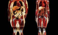 ¿Cómo afecta la obesidad al sistema óseo?