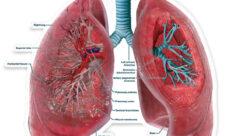 ¿Cuál es el órgano principal del sistema respiratorio?