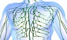 ¿Cómo prevenir las enfermedades del sistema linfático?
