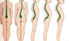 Tipos de desviaciones de la columna vertebral