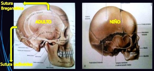 Diferencia del cráneo de un bebé y el de un adulto