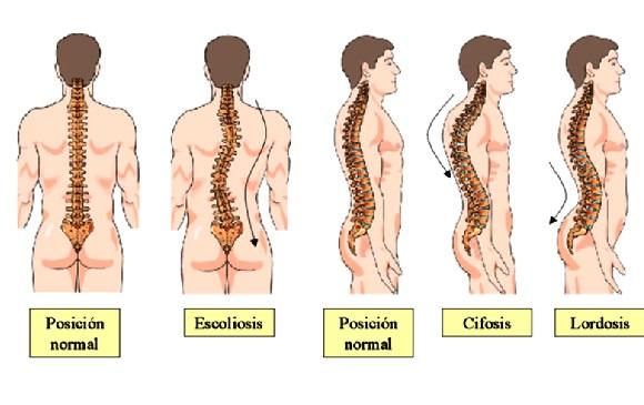 Enfermedades que afectan la columna vertebral