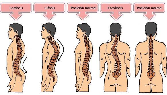 Trastornos de la columna vertebral