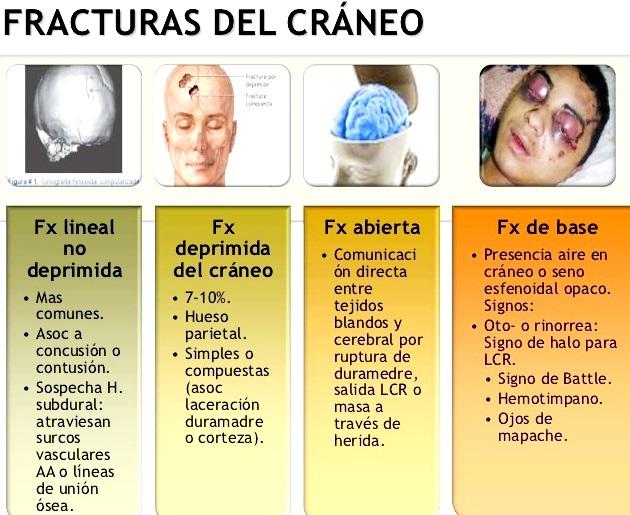 ¿Qué es una fractura del cráneo?