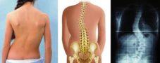 ¿Qué es una escoliosis de columna?