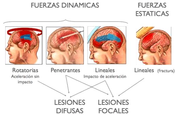 ¿Qué es un traumatismo de cráneo?
